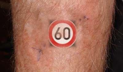 scar60