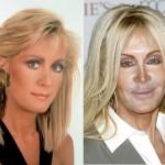 Joan Van Ark Bad Plastic Surgery