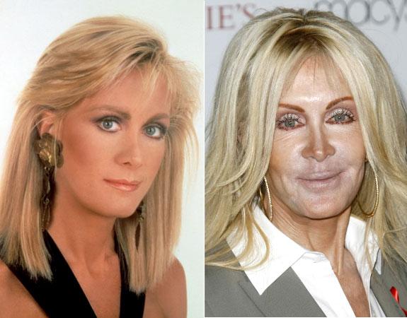 Joan-Van-Ark-Bad-Plastic-Surgery